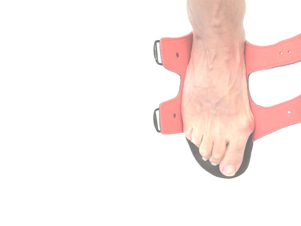 Hallux valgus dans une sandale moulée sur mesure
